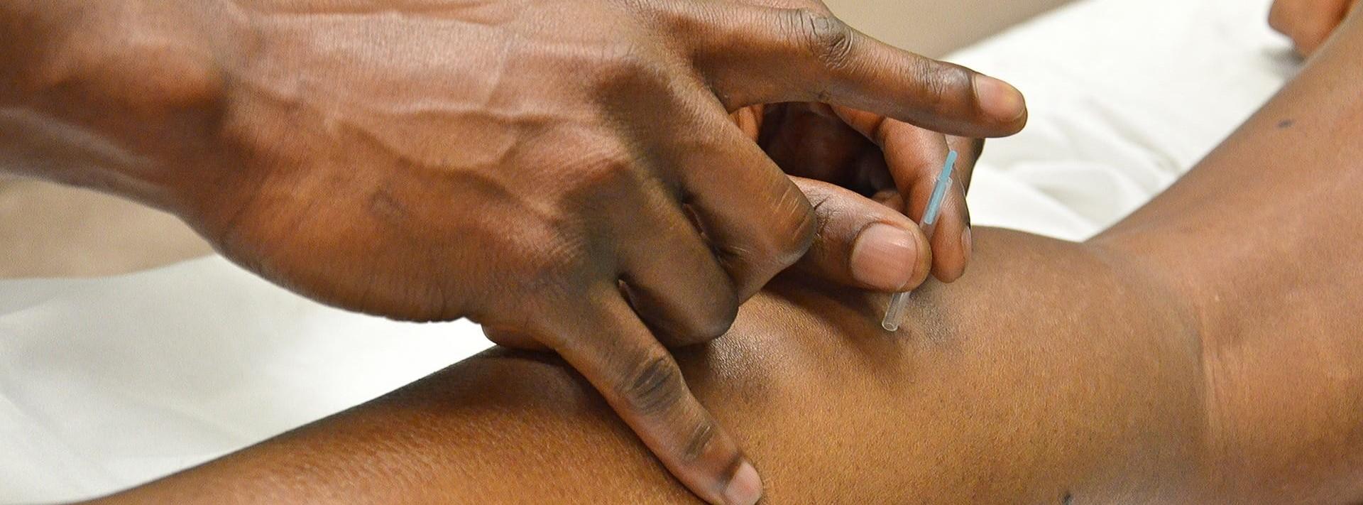 Acupuncture à liege - Wazaa